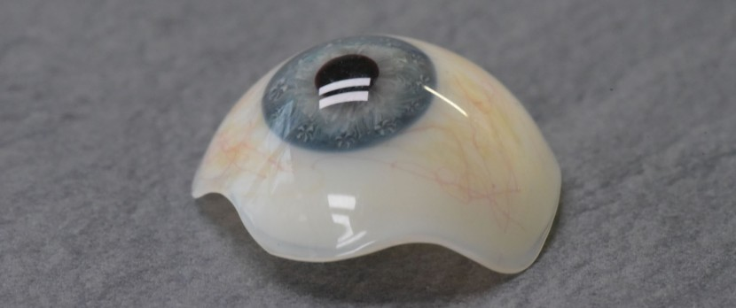 Scleral shell
