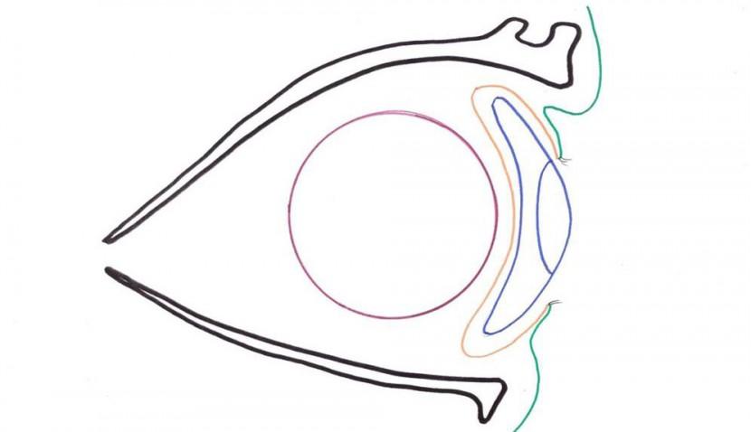 Orbital implant